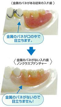 入れ歯に金属のバネがある・ないの違いだけで